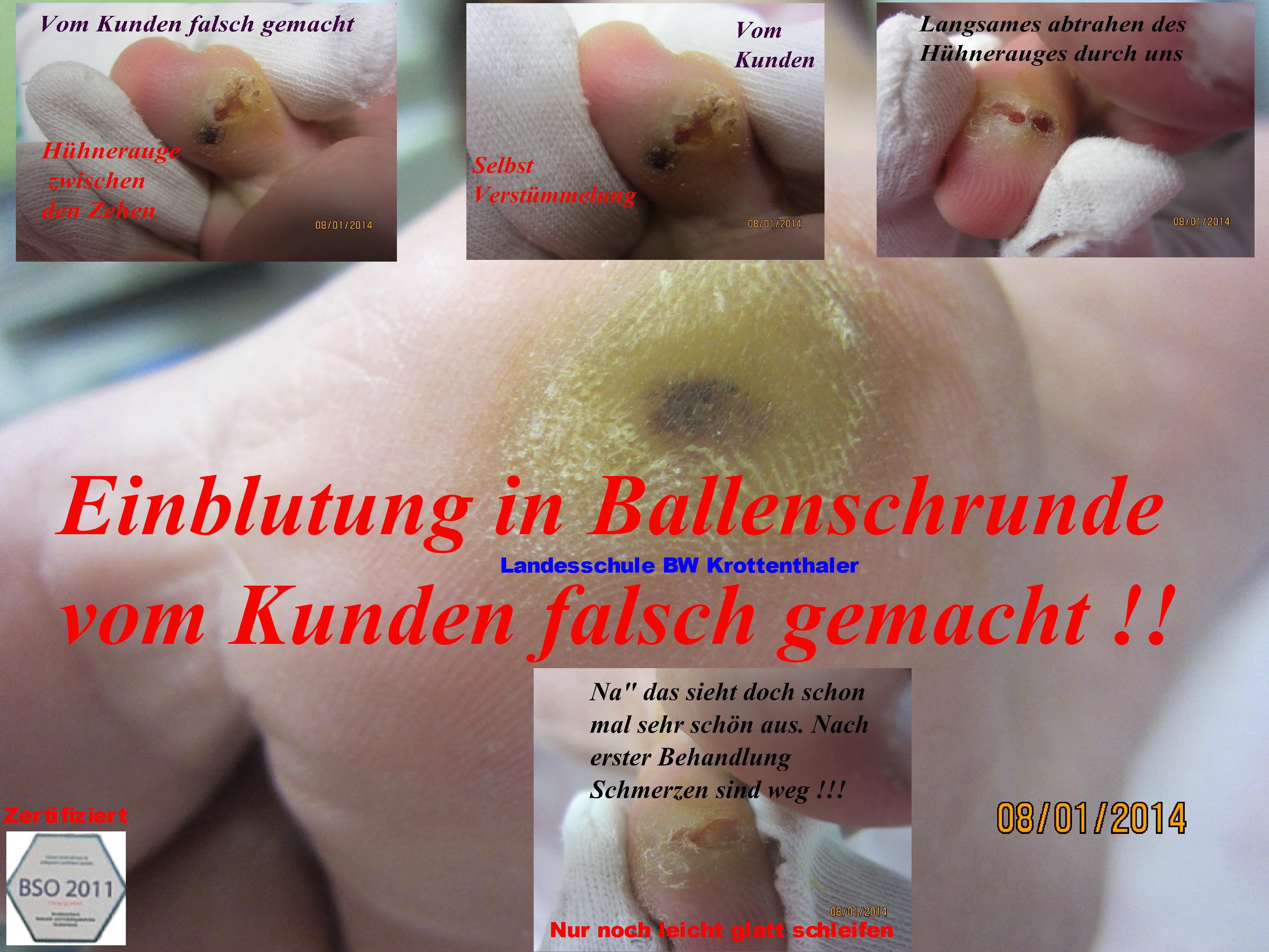 Fuß Hr. Fischer IMG_0971